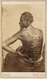Gordon,_scourged_back,_NPG,_1863